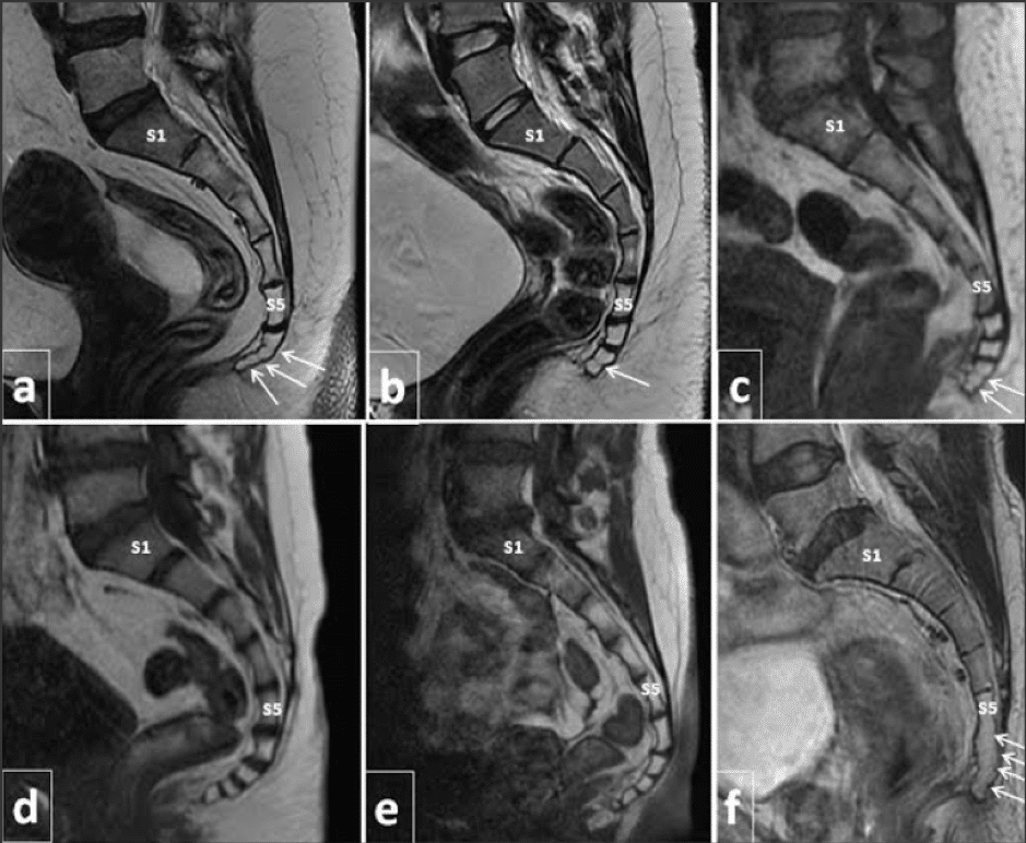 Coccyx MRI Scans