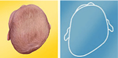 Signs of Positional Plagiocephaly